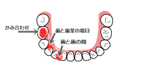 dental_formula_type_square